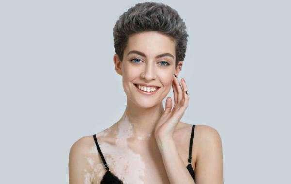 How To Successfully Treat Your Vitiligo